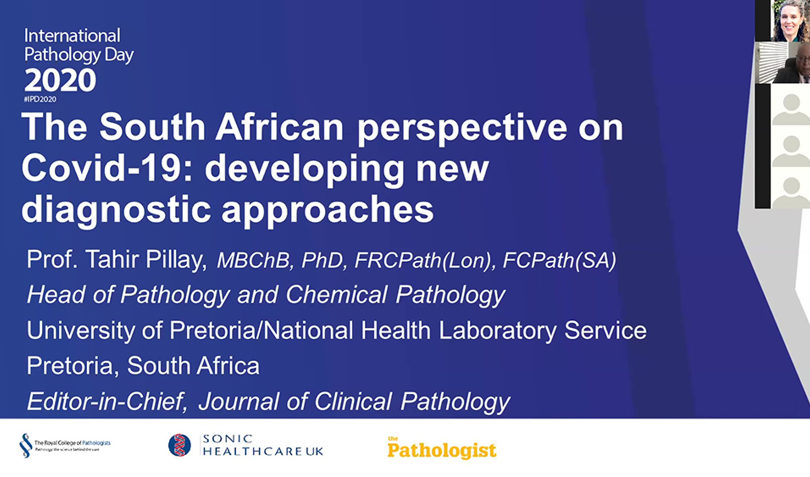 The South African perspective on Covid-19: developing new diagnostic approaches