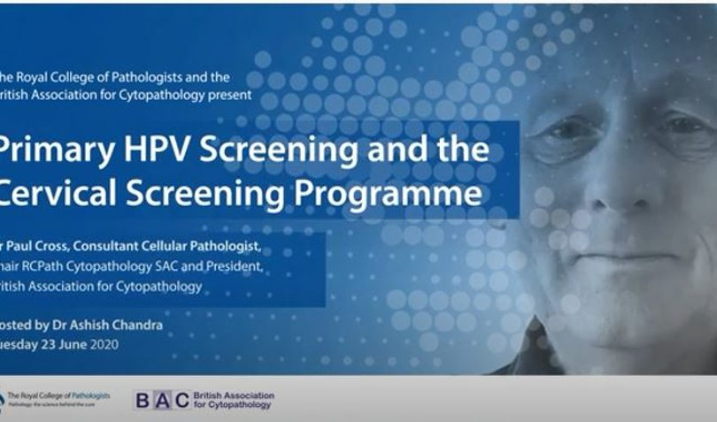 Primary HPV Screening and The Cervical Screening Programme -23  JUNE 2020